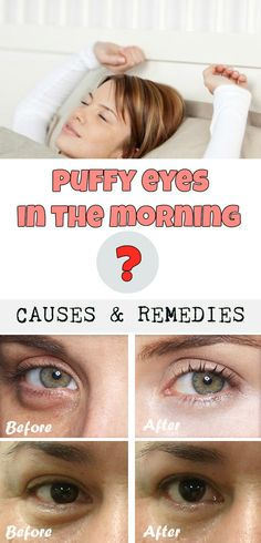 Puffy eyes in the morning? Causes and remedies - Beauty-Total.com