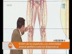 36 Ideas De Claudicación Claudicación Enfermedad Arterial Periférica Enfermedad De Buerger