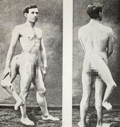 14 Vintage Freak Show Performers - Creepy Gallery