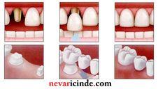 Diş kesimi nasıl yapılır?