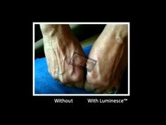 Jeunesse® Global Luminesce™ Amazing Before and After Photos (+playlist)
