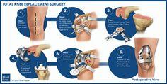 Total Knee Replacement Surgery - www.mountsinai.org