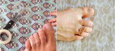 Ez a trükk segít, hogy többé ne fájduljon meg a lábad, ha magassarkú cipő van rajtad! - Bidista.com - A TippLista! Neon, Slim, High Heels, Neon Colors, Neon Tetra