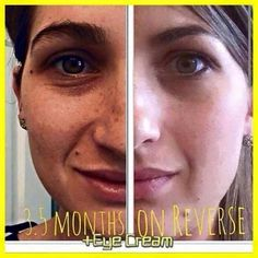 Get rid of those brown spots and uneven skin tone today with our Reverse Regimen. Follow my link to order yours today: ajordan3.myrandf.com #skincare #agespots