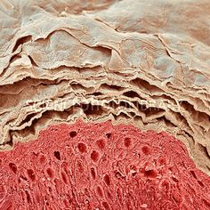 Skin layers, SEM #microscope #microscopic #biology #medical #medicine #human