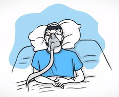 Those with sleep apnea are more likely to have eye problems. CPAP users experience occasional mask edge air leaks that result in eye irritation, occasional swelling and dryness.