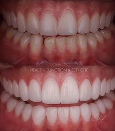 Salud función y estética... Rehabilitación bucal completa en restauraciones cerámicas... #dentistry #estheticdentistry #smiledesign #ceramicveneers #ceramic #victorsanchez #venezuela #lifestyle #passion #livewithpassion by odvictorsanchez Our General Dentistry Page: http://www.lagunavistadental.com/services/general-dentistry/ Google My Business: https://plus.google.com/LagunaVistaDentalElkGrove/about Our Yelp Page: http://www.yelp.com/biz/fenton-krystle-dds-laguna-vista-dental-elk-grove-3…