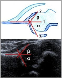 ECR 2011 / C-1469 / Infant hip ultrasound – all you wanted to know but were afraid to ask - EPOS™