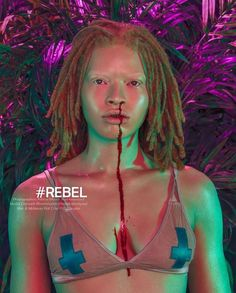 Guess what? I've been published in #BASICMagazine!!! 🤗 #REBEL Check it out at http://basic-magazine.com/rebel-by-ashley-wessel/ and please share!   Photographer: @ashleawessel  Hair & Makeup: @katvonpire  #Bnmmodels @Bnmmodels @Madrevans @Gregrempel #Bnmfamily #Albino #Queen #ModelStatus @Badgalriri #Albinism #AlbinismBeauty #Bnm #Model #FashionGram #Blood #Fighter #Glitter #Rose  #Photography #AnotherWorld #FightTime #ComeAtMeBruh #FighterGirl