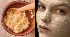 Remove Age Spots, Freckles, Wrinkles, Excess Face Fat and Lighten Your Skin In a Week - Health And Healthy Living Age Spot Removal, Lighten Skin, Beauty Care, Diy Beauty, Prevent Wrinkles, Wrinkle Remover, Tips Belleza, Beauty Recipe, Flawless Skin