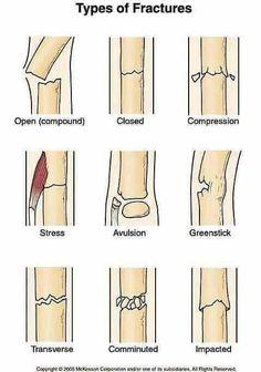 How to Use a Sam Splint to Treat Bone Fractures - Medizinstudium - Nursing School Notes, Medical School, Nursing Schools, Lpn Schools, Med Student, Student Nurse, Surgical Tech, Medical Anatomy, Grey's Anatomy