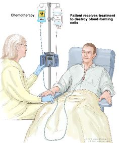 Stem cell transplant (Step 2). The patient receives chemotherapy to kill blood-forming cells. The patient may receive radiation therapy (not shown).
