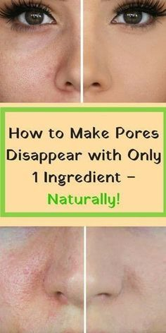 How to Make Pores Disappear #skin