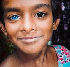 Image result for people with unusual eye colours