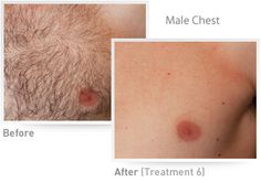 IPL Hair Removal results on male chest after 4 treatments (results will vary)