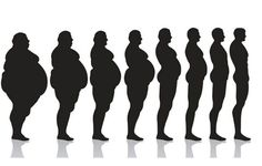Advanced Bariatric Center | Bariatric and Gastric sleeve experts
