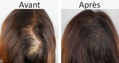 Alopecia is the term for hair loss, a problem that can affect both men and women. Here are 4 tips that promote natural hair regrowth in just weeks. Alopecia: a problem that affects many people Many factors can cause alopecia: family history, smoking, stre Hair Loss Causes, Prevent Hair Loss, Hair Remedies For Growth, Hair Loss Remedies, Natural Hair Regrowth, Natural Hair Styles, Hair No More, New Hair Growth, Hair Loss Women