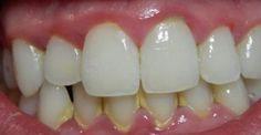 Υγεία - Όλοι γνωρίζουμε ότι όταν πρόκειται για την αφαίρεση της πλάκας, ο οδοντίατρος είναι αυτός που θα κάνει τη δουλειά τέλεια. Ωστόσο, υπάρχουν πολλές φυσικές σ
