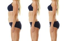 Minimizing excess skin after weight loss image 8