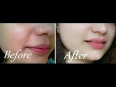 Free Presentation Reveals 1 Unusual Tip to Eliminate Your Acne Forever and Gain Beautiful Clear Skin In Days - Guaranteed! How To Cure Pimples, Acne And Pimples, Honey On Pimples, Pimple Scars, How To Tan Faster, How To Get Rid Of Acne, Flawless Skin, Acne Treatment, Clear Skin