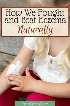 Eczema is inflammation of the skin due to an overactive immune system. The symptoms and root cause can be dealt with naturally by addressing diet and gut health. Treat eczema naturally at Naturally Free Life! Dry Skin Remedies, Health Remedies, Natural Remedies, Herbal Remedies, Eczema Causes, Eczema Symptoms, Healthy Skin Tips, How To Stay Healthy, Healthy Life
