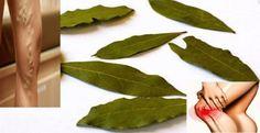 remedio natural a base de laurel, con el cual podrás tratar las venas varicosas, la pérdida de memoria, los dolores articulares, de cabeza, y muchos otros