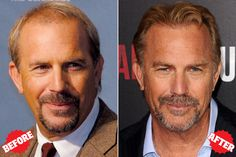Kevin Costner Hair Transplant - Lots of Celebrities like Kevin Costner has done successful hair transplant, Hair implant cosmetic surgery. You can also get your hair back and it can become from bald to beautiful.  At Dezire Clinic we provide Hair Transplant at very low cost with 100% results. You can consult your case with our experts at Pune, Delhi, Gurgaon, Bangalore and Channai. Call us on +91 9222122122