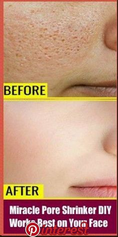 Beauty Discover Miracle pore shrinker diy - works best on your face - beauty Beauty Care Beauty Skin Beauty Hacks Beauty Tips Face Beauty Diy Beauty Beauty Products Homemade Beauty Beauty Ideas Beauty Care, Beauty Skin, Beauty Hacks, Beauty Tips, Face Beauty, Diy Beauty, Beauty Products, Homemade Beauty, Face Products