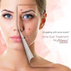 Skin pigmentation treatment in bangalore dating