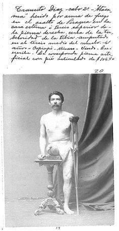 Mutilado-en-la-GdP-21 - Guerra del Pacífico - Wikipedia, la enciclopedia libre