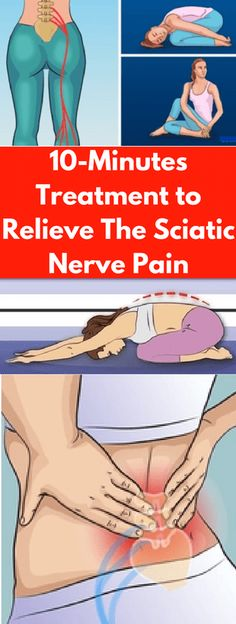 10-Minutes Treatment To Relieve The Sciatic Nerve Pain!!!!! - All What You Need Is Here