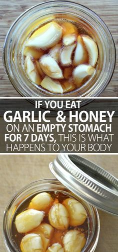 Eat Garlic and Honey on an Empty Stomach for 7 Days and THIS Will Happen to Your Body! - Natural Cures Not Medicine Holistic Remedies, Natural Health Remedies, Natural Cures, Herbal Remedies, Flu Remedies, Healthy Tips, Healthy Recipes, Healthy Snacks, Nutrition