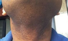 Resultados Reais - Tend Skin® Brasil Tend Skin, Uneven Skin Tone, Archive, Ingrown Hairs