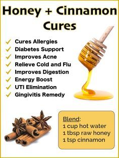 Honey and Cinnamon Benefits and Natural Cures - Dr Axe Honey And Cinnamon Cures, Cinnamon Benefits, Benefits Of Honey, Natural Health Remedies, Natural Cures, Home Remedies, Ayurvedic Remedies, Flu Remedies, Natural Healing