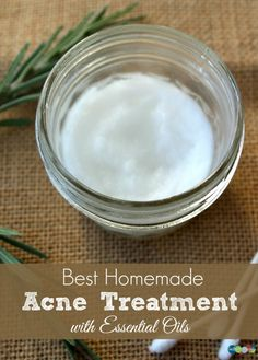 this Homemade Acne Treatment that has helped work wonders for my skin. It's made with natural essential oils so you know you're getting the best!