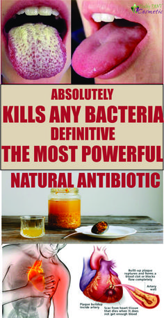 Absolutely kills any bacteria;Definitive the most powerful natural antibiotic!