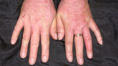 Skin Disorders: Pictures, Causes, Symptoms, Treatments, and Prevention Flirty Good Morning Quotes, Itchy Skin Rash, Blemish Remedies, Latex Allergy, Contact Dermatitis, Viral Infection, Disorders, Allergies