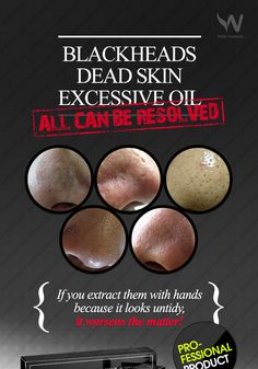 Your pores cannot be exceptions. If you extract them with hands because it looks untidy, it worsens the matter.  The solution for enlarged pores with blackheads is Blackhead nose mask.   + Profesional product + Artificial color, Paraben free + Black care + Dead skin cell care + Sebum care + Pore care