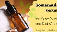 The Best Homemade Serum Ever for Acne Scars and Red Marks. You're able to find this recipes in your own home for Free!