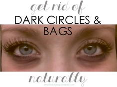 how to naturally battle the under-eye dark circles & bags
