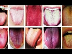 This Is What Your Tongue Has To Say About Your Health! - YouTube
