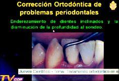 Videoconferencia: Ortodoncia en adultos - Dra. Nelly Huasco | Odonto-TV