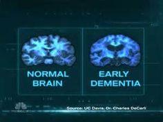 brain health news - yahoo Image Search Results