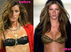 Ladies, before you start comparing your breasts to the ones bouncing down the Victoria's Secret runway... Model Gisele before/after breast implants. #Feminism #Gisele