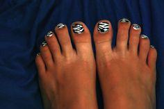 Zebra Toe Nails!
