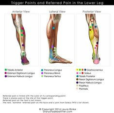 """When one states that they have a """"knot in their muscle"""" we are usually referring to a pain in your leg, arm, back, shoulders, neck etc. These are actually known as trigger points. This is a small p. Muscle Pain, Stretch Calf Muscles, Calf Pain, Leg Pain, Sore Calves, Peroneus Longus, Trauma, Muscle Knots, Massage"""