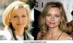 Michelle Pfeiffer nose job
