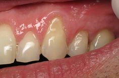 Receding gums is often a sign of gum disease. Learn the natural remedies for receding gums and how to grow them back naturally.