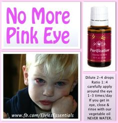 Young Living Purification, Myrrh & Lavender essential oils work well for pink eye. Dilute with a carrier oil. Essential Oils For Babies, Essential Oil Uses, Young Living Essential Oils, Yl Oils, Doterra Essential Oils, Ayurveda, Young Living Purification, Living Essentials, Young Living Oils