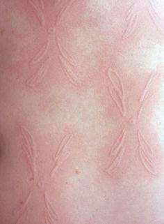 Skin disorder?  Make good art.